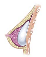 Posizionamento sottoghiandolare protesi seno