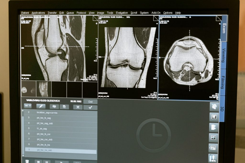 MRI of knee to investigate bone marrow edema