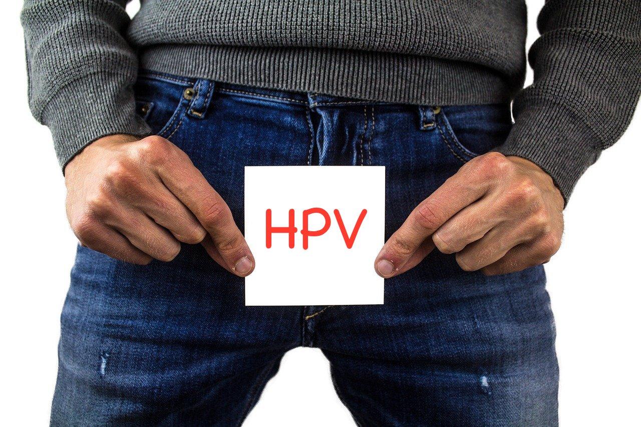 HPV genital warts or condyloma due to human papillomavirus