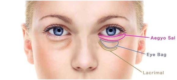 aegyo sal under eye location not same as eye bags